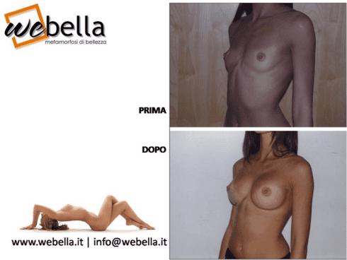 interventi al seno