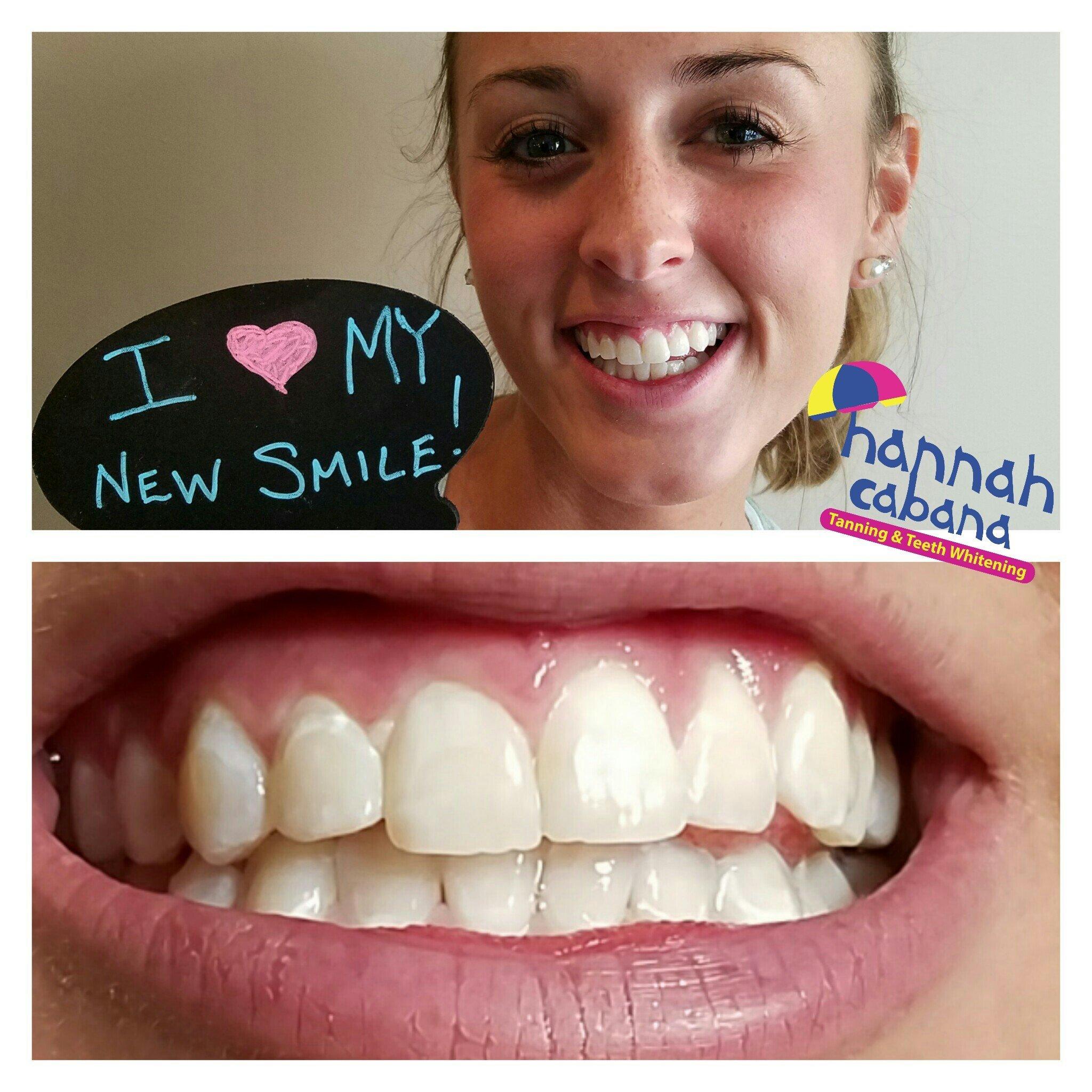 Teeth Whitening Sanford, Pinehurst & Fayetteville, NC