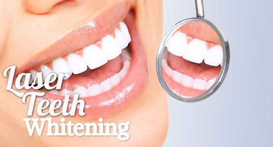 Teeth Whitening Sanford, Pinehurst & Fayetteville, NC