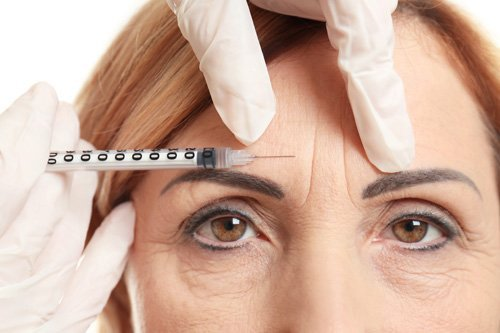 trattamento botulino donna