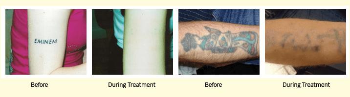 Tattoo Removal - Grays - Dartford - Up2Scratch