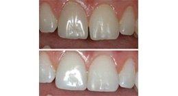 Estetica dentale, dentista, estetica denti
