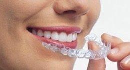 ortodonzia, dentista, apparecchi invisibili, apparecchi trasparenti