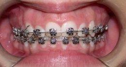 Ortodonzia, apparecchio ortodontico, ortodontista, dentista, apparecchio fisso