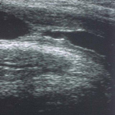 urethral ultrasound
