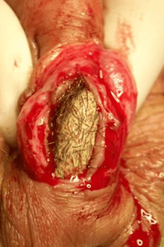 urethral calculi