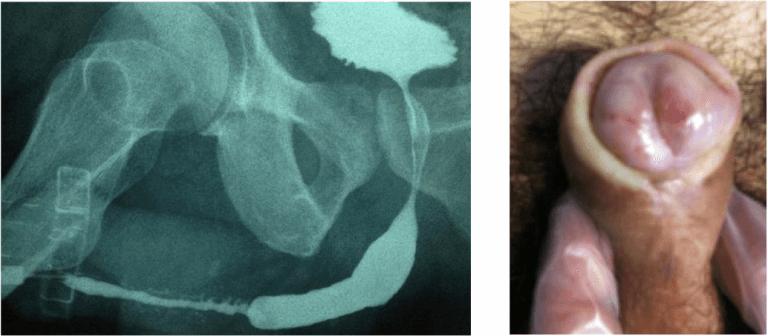 lichen sclerosus