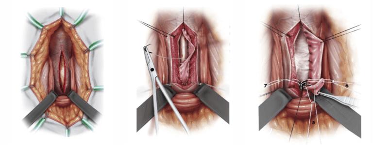 urethroplasty for enlargement