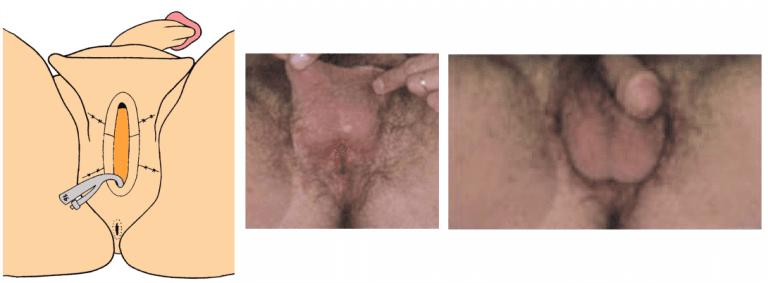 bulbar urethral stricture