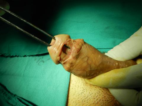 urethral fistula