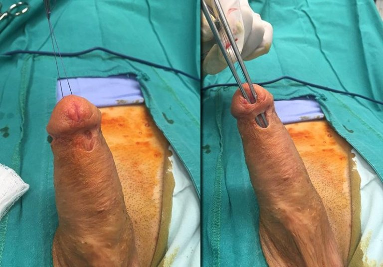urethral fistula complication