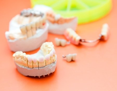 preparazione dentiere