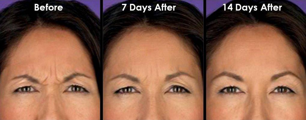 Premier ENT Cosmetics Botox & Dysport | Premier ENT Cosmetics