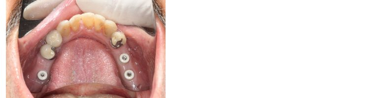 dental implants operation