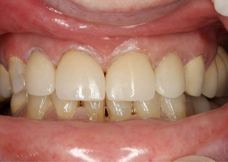 Before and after cosmetic dentistry in North Perth