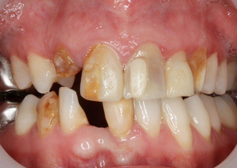 teeth makeover before