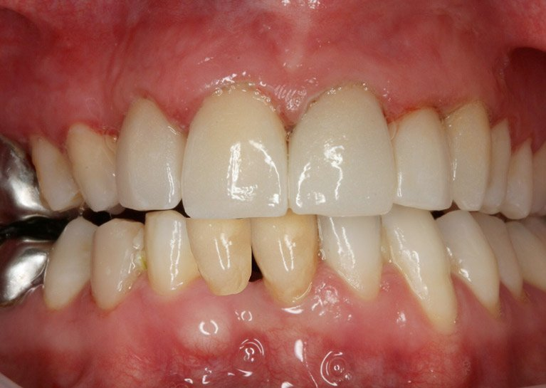 teeth makeover after