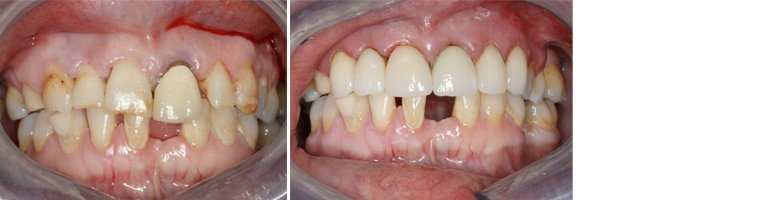crowns before after