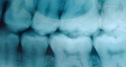 radiografia endorale e odontoiatrica, radiografie in sede, cura del dente del giudizio