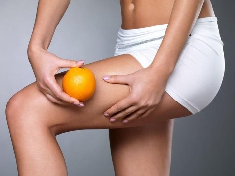 gambe di donna dopo carbossiterapia