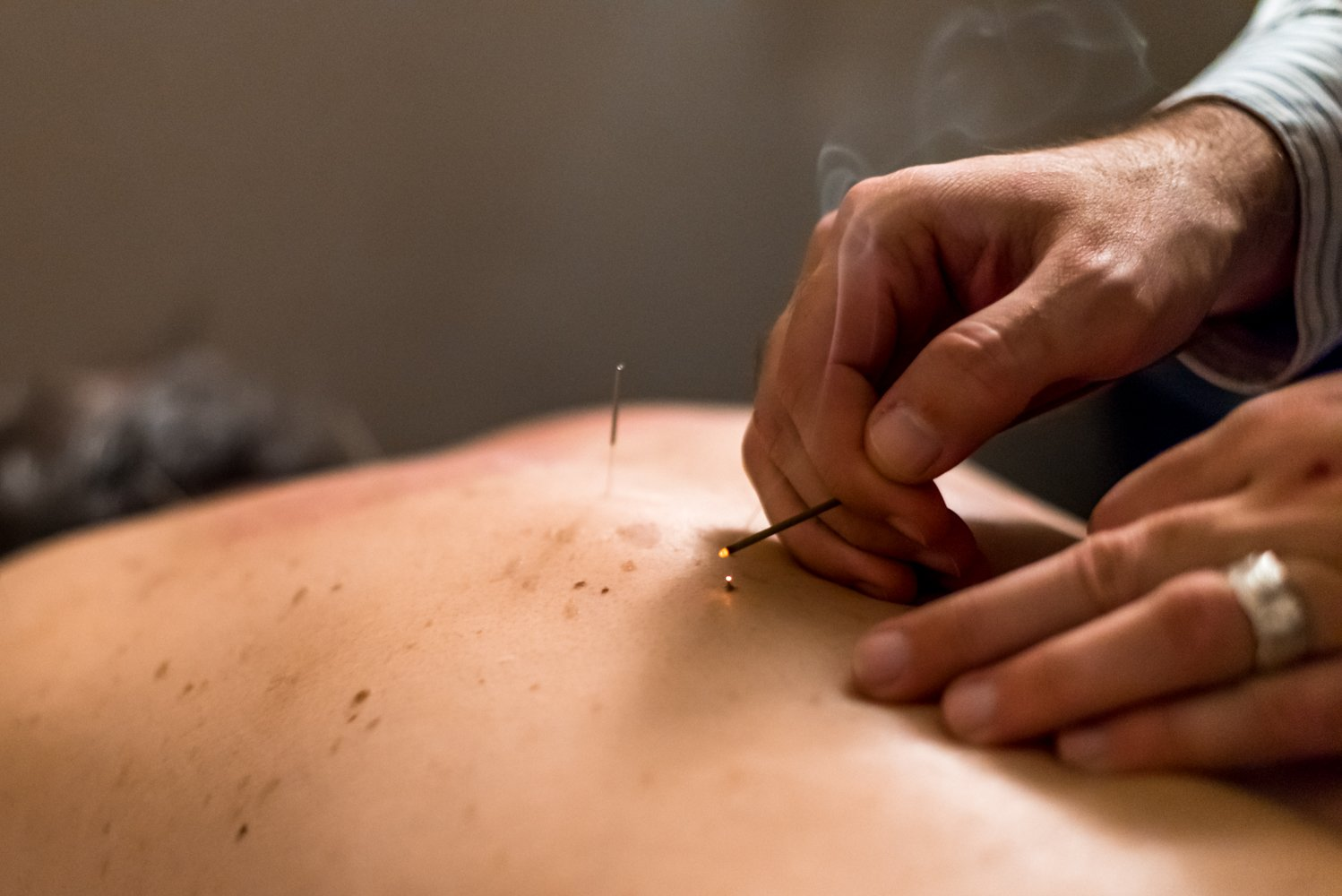 Stonegate Wellness Austin acupuncture 3