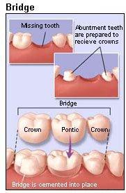 dental bridge porcelain zz f
