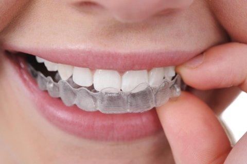 Ortodonzia mobile