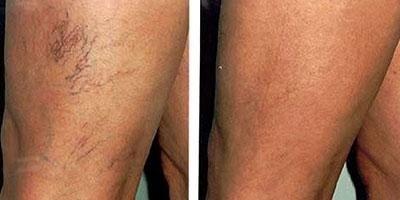 teleangectasie delle gambe