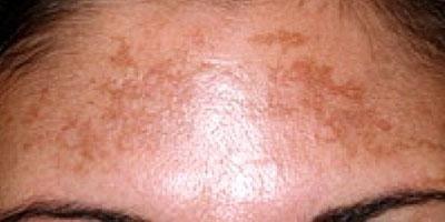rimozione-macchie-della-pelle