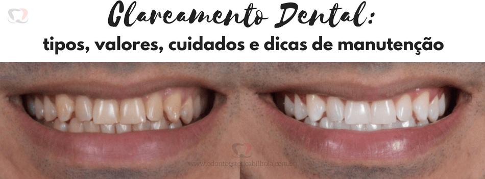Clareamento Dental Tipos Precos Cuidados Edicas De Manutencao