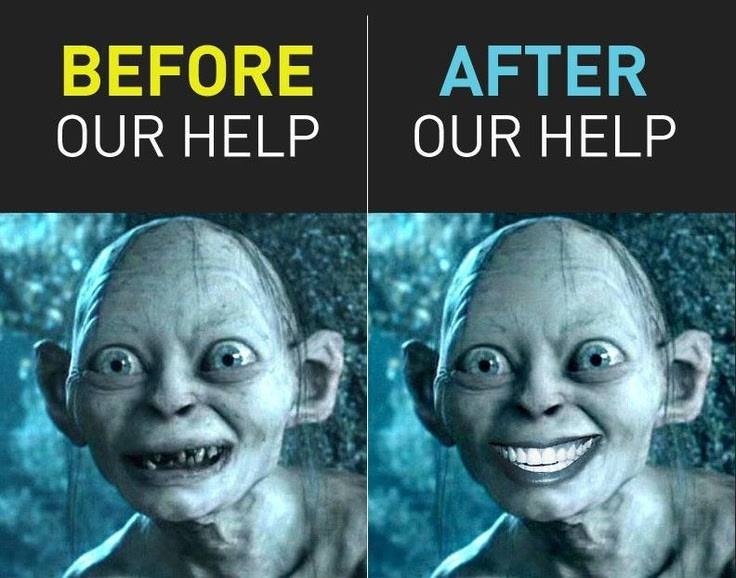 SMEAGOL BEFORE AND AFTER DENTAL HUMOUR FAMILY DENTAL CENTRES