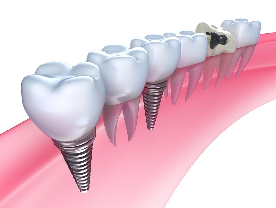 Example of Dental Inplant