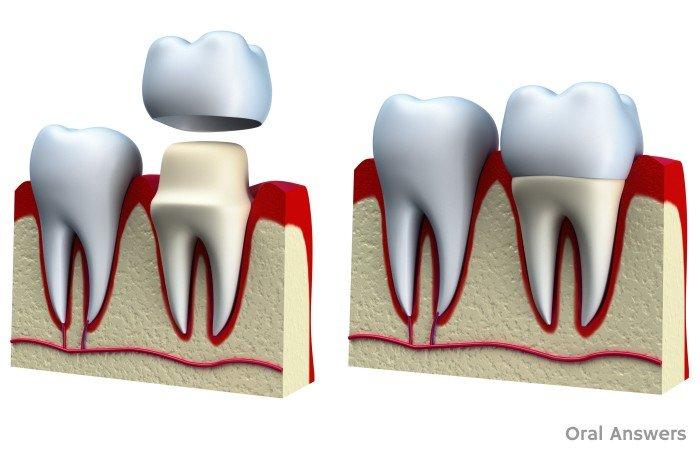 crowns - teeth