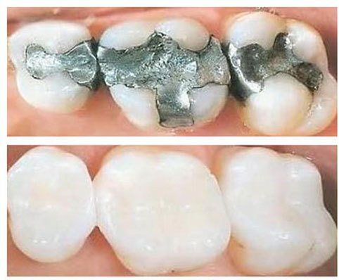 Metal-free tooth filling before and after views