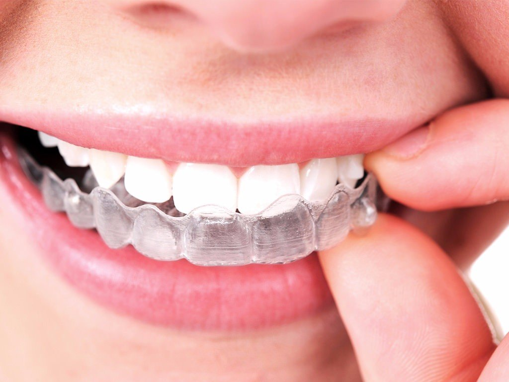5 reasons you should invest in invisalign solutioingenieria Choice Image