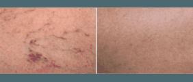 dermatologia, laserterapia