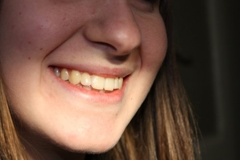 Il sorriso della paziente dopo la terapia