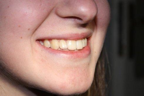 trattamento ortodontico adulti