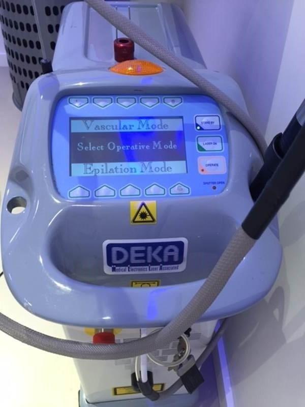 Laser vascolare Deka angiomi La Spezia