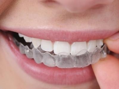 apparecchio dentale.jpg