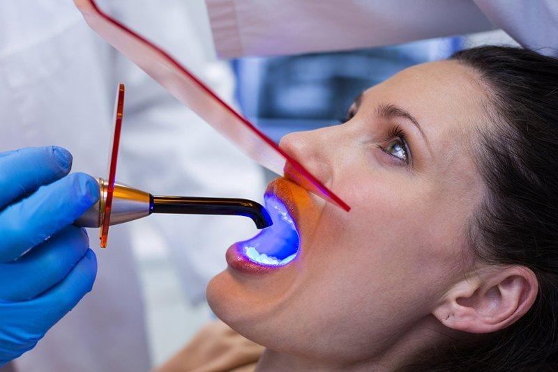 cure dentali su una paziente