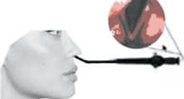 endoscopia orl