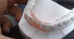 Studio Dentistico Gava, Cerveteri (RM), patologie
