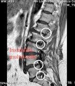 Chirurgia vertebrale a Lecce