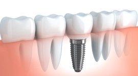 odontotecnico, estrazioni dentali