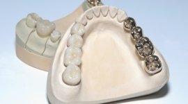 protesi, apparecchi ortodontici