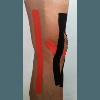 Fisioterapia articolazioni