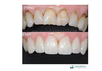 denti prima e dopo pulizia