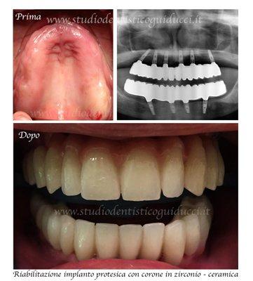 foto palato, radiografia e denti dopo trattamento
