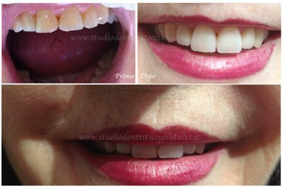 denti prima e dopo trattamento dentale